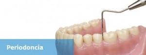 Avances en el tratamiento periodontal