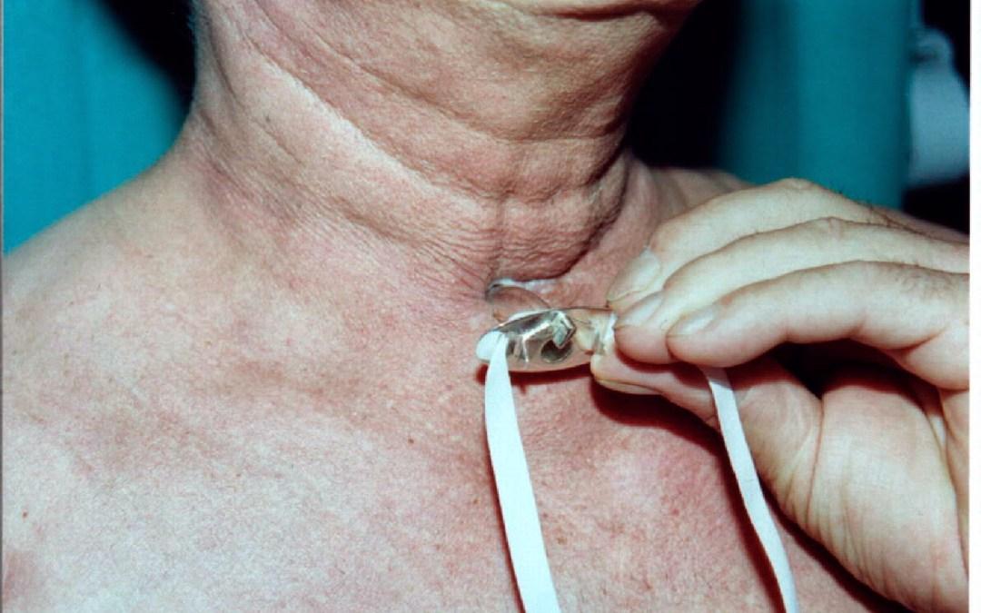 ¿Qué es una traqueotomia?