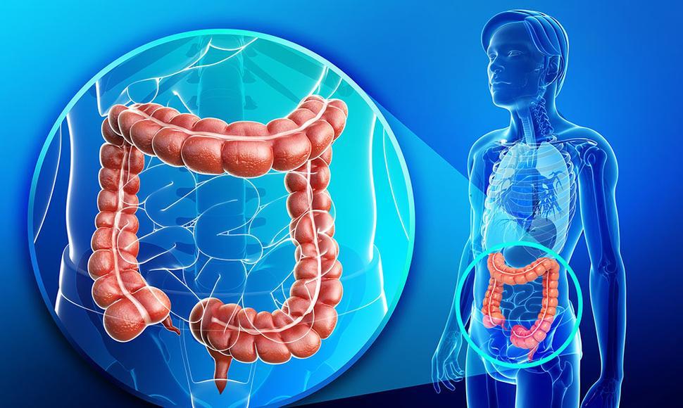 Dieta para eliminación de gases intestinales y des-inflamación del colon