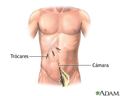 Tipos de cirugía mínimamente invasiva: