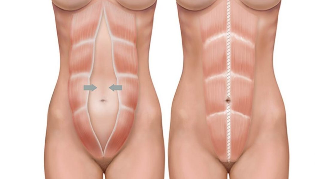 Abdominoplastia: