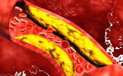 Hipercolesterolemia o Colesterol Alto: