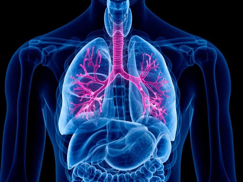 ¿Qué es la fibrosis quística?
