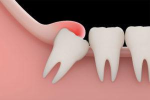 Cirugía de terceros molares: