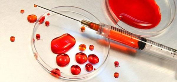 convulsii varicoase ale mușchilor de vițel)