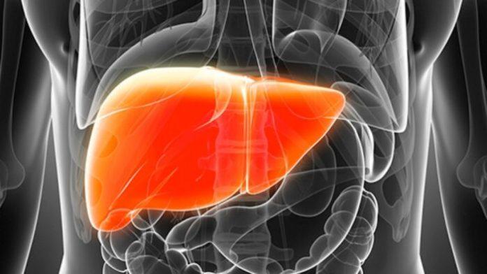 NASH and NAFLD Liver Disease