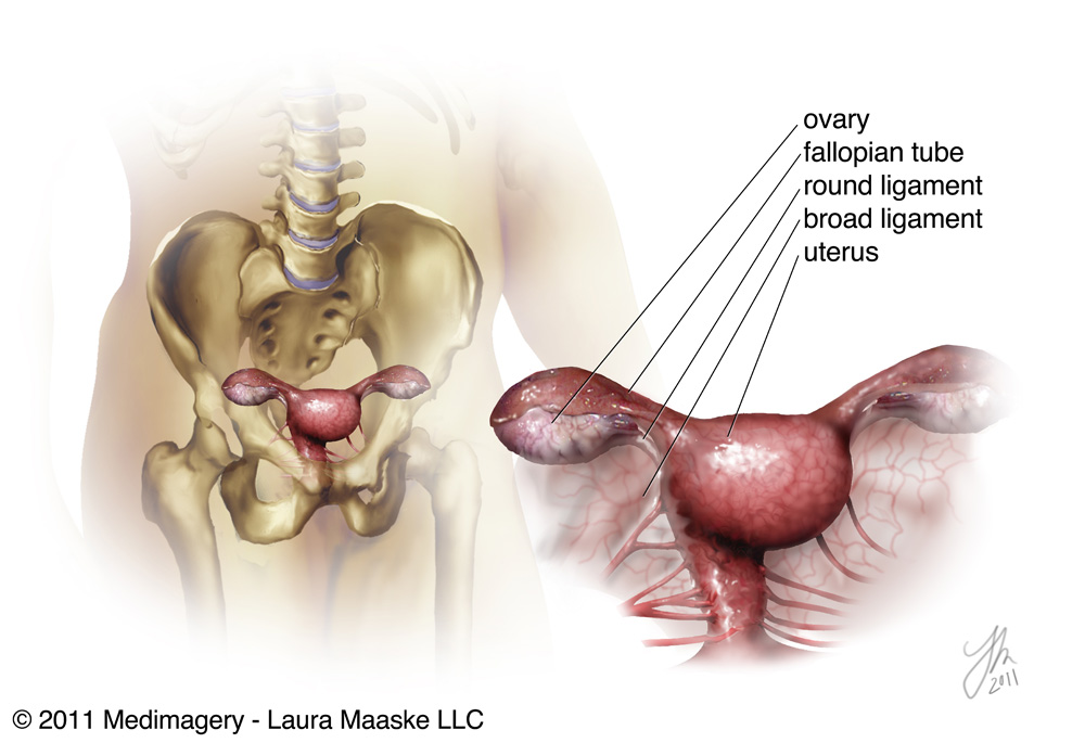 An Illustrated Ovarian Transposition: Oophoropexy