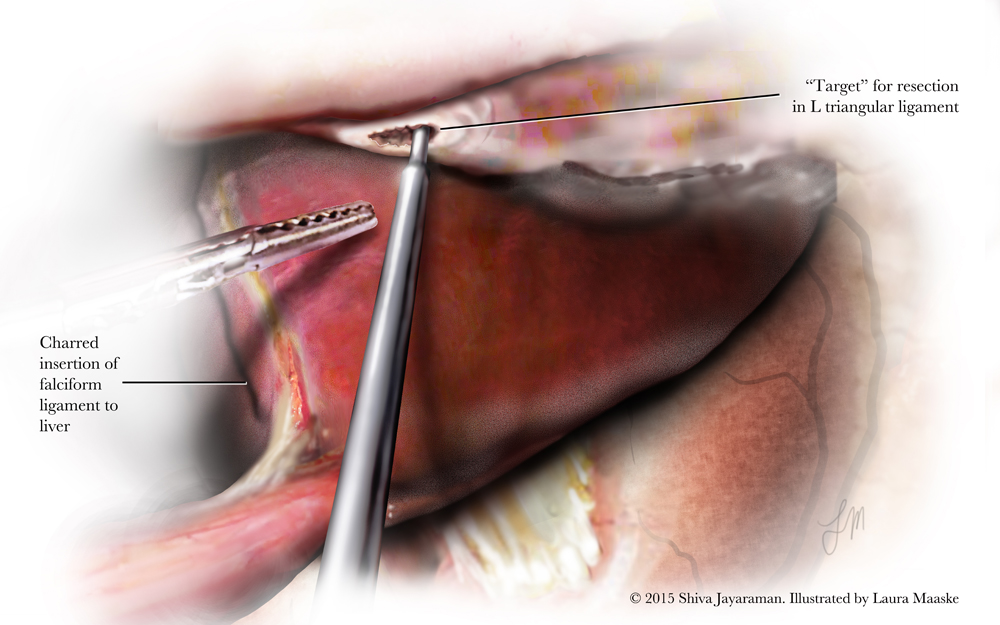 Surgery Archives - Medical Illustrations & Animations by Laura ...