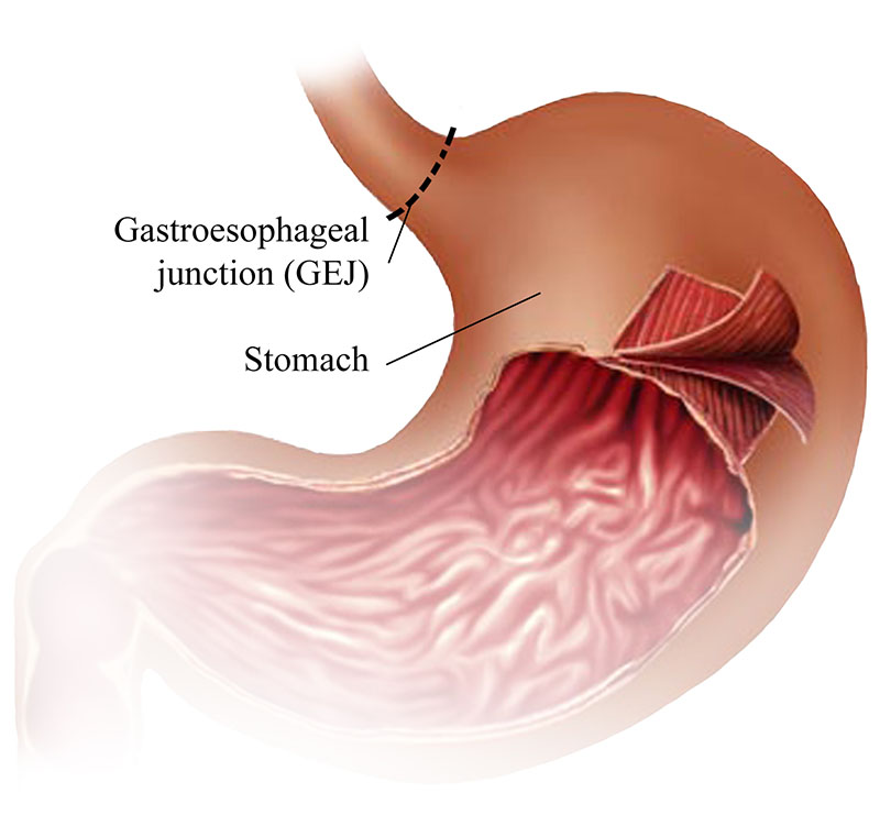 Illustrated Gastric Stomach Layers: The Three Layers of the Stomach ...