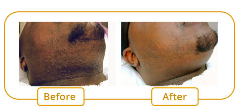 Hair Removal For Pigmented Skin MdIME Institut De