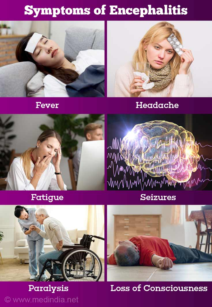 Causes, Symptoms, Diagnosis, Treatment