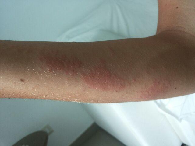 Dermatite da contatto con medusa il giorno dopo (non trattata)