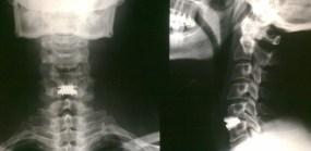 Protesi disco intervertebrale su C5-C6