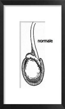 testicolo e funicolo normale