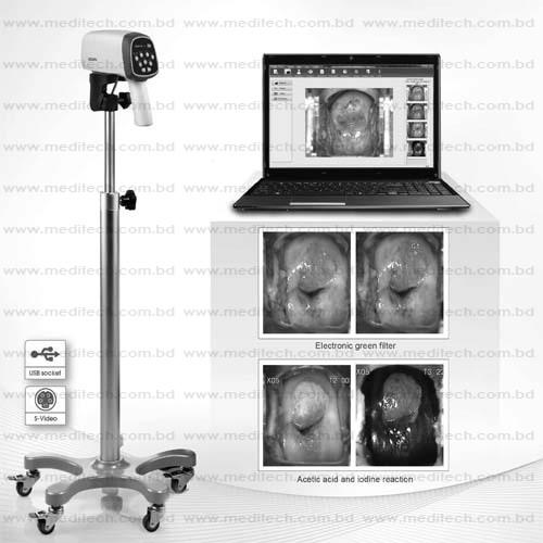 Video Colposcope