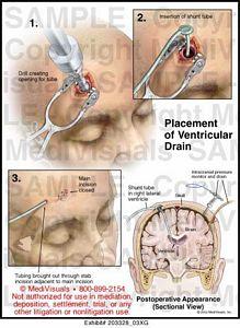 Medivisuals Placement of Ventricular Drain Medical Illustration