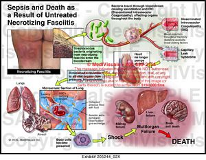 gastric bypass diagram ford ka electrical wiring medivisuals sepsis and death as a result of untreated necrotizing fasciitis medical illustration