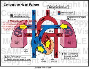 cardiac conduction system diagram r33 gtr wiring congestive heart failure medical illustration medivisuals
