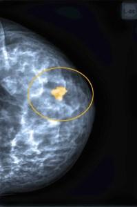 Frueherkennung_Mammografie_Krebs Kopie
