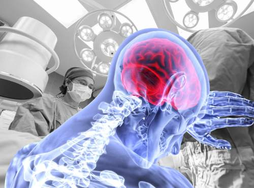 Krankenhaus haftet für nicht erkannte Gehirnblutungen