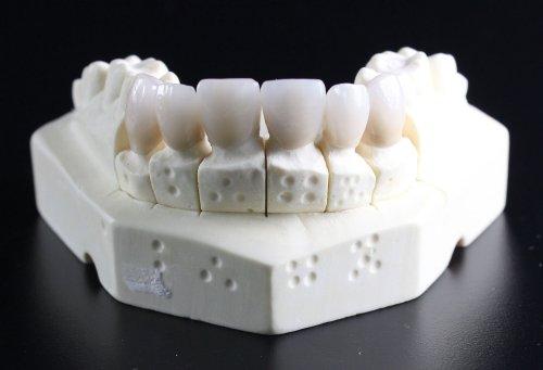 LG Darmstadt: Zahnärztliches Praxislabor darf Gewinn machen