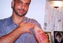 Photo of POSVE NEVJEROJATNO Čovjeku se pojavila opeklina nakon molitve! Kirurg izjavio: Zaprepašten sam