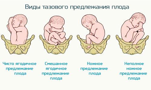 """Курсовая """"Тазовое предллежание"""""""