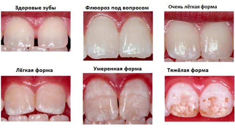 Флюороз - методы профилактики
