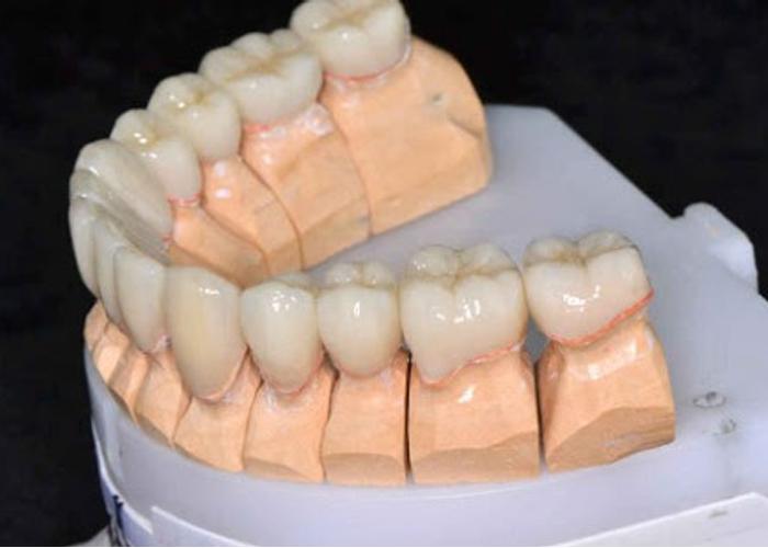Технология изготовления прессованной керамики