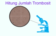Hitung Jumlah Trombosit Metode Tabung