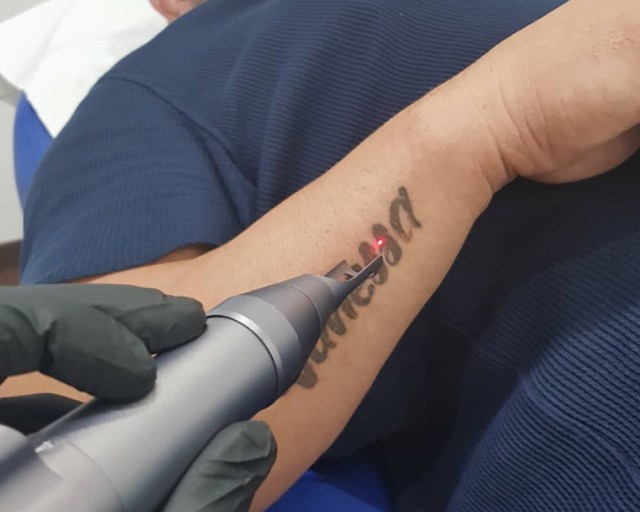 2019 Ultimate Guide To Buying A Laser Tattoo Removal Machine