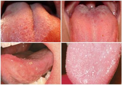 Pembengkakan Pada Lidah- Global Estetik Dental Care
