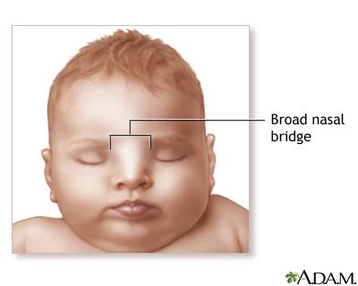 Broad nasal bridge: MedlinePlus Medical Encyclopedia Image