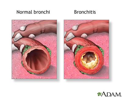 Acute bronchitis: MedlinePlus Medical Encyclopedia