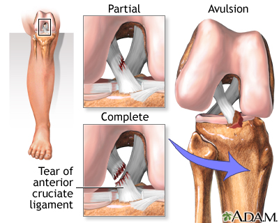 front leg ligament diagram avionics wiring symbols anterior cruciate acl injury medlineplus medical degrees