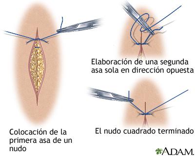 Procedimiento para suturar una herida - Serie—Cómo cerrar una herida por  sutura (sexta parte): MedlinePlus enciclopedia médica