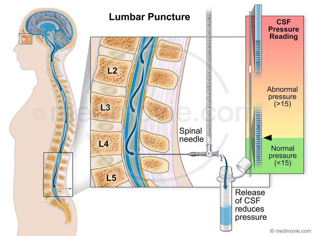 lumbar puncture diagram 95 ford explorer wiring medmovie com