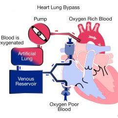 Diagram Of A Heart Bypass Graft Minn Kota Terrova Wiring Lung