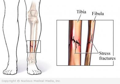diagram of tibia stress fracture how to read automotive wiring diagrams for dummies muscles and skeleton conditions page 3 7 medicine health definition