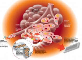 После распада опухоли сколько живут. Раковая интоксикация. Распад опухоли — это хорошо или плохо? Истории наших читателей