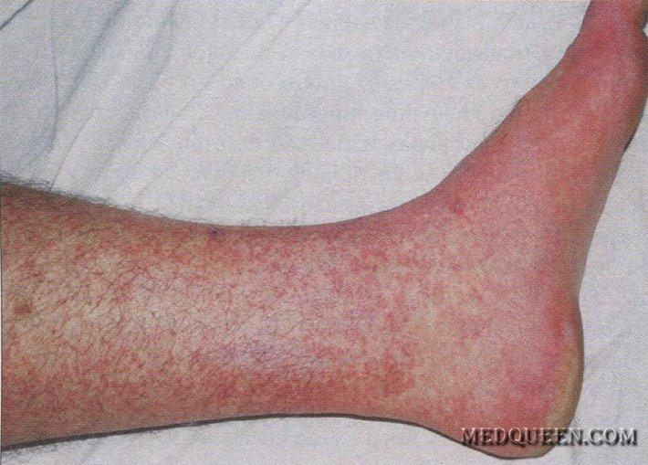Simptomele Chikungunya