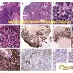 Immunoproliferative Diseases