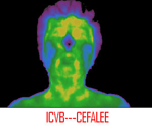 cefalee secundara produsa de icvb