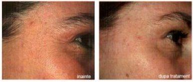 Comparatie intre ridurile la ochi inainte si dupa tratamentul estetic medical