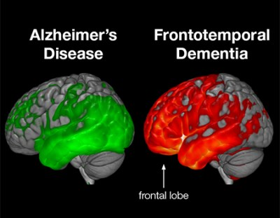 Examining the Link Between Early-Stage Dementia and ...