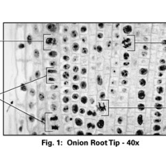 Onion Root Tip Diagram Freightliner Wiring Diagrams