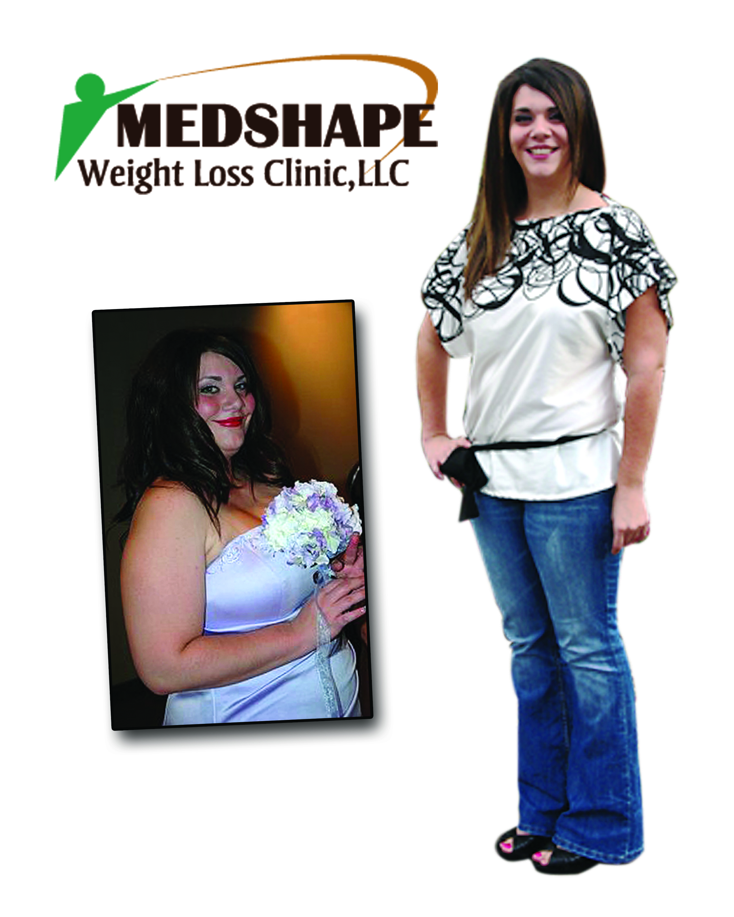 Medshape before / after Photo 2