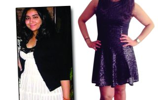 medshape before after weight loss 7