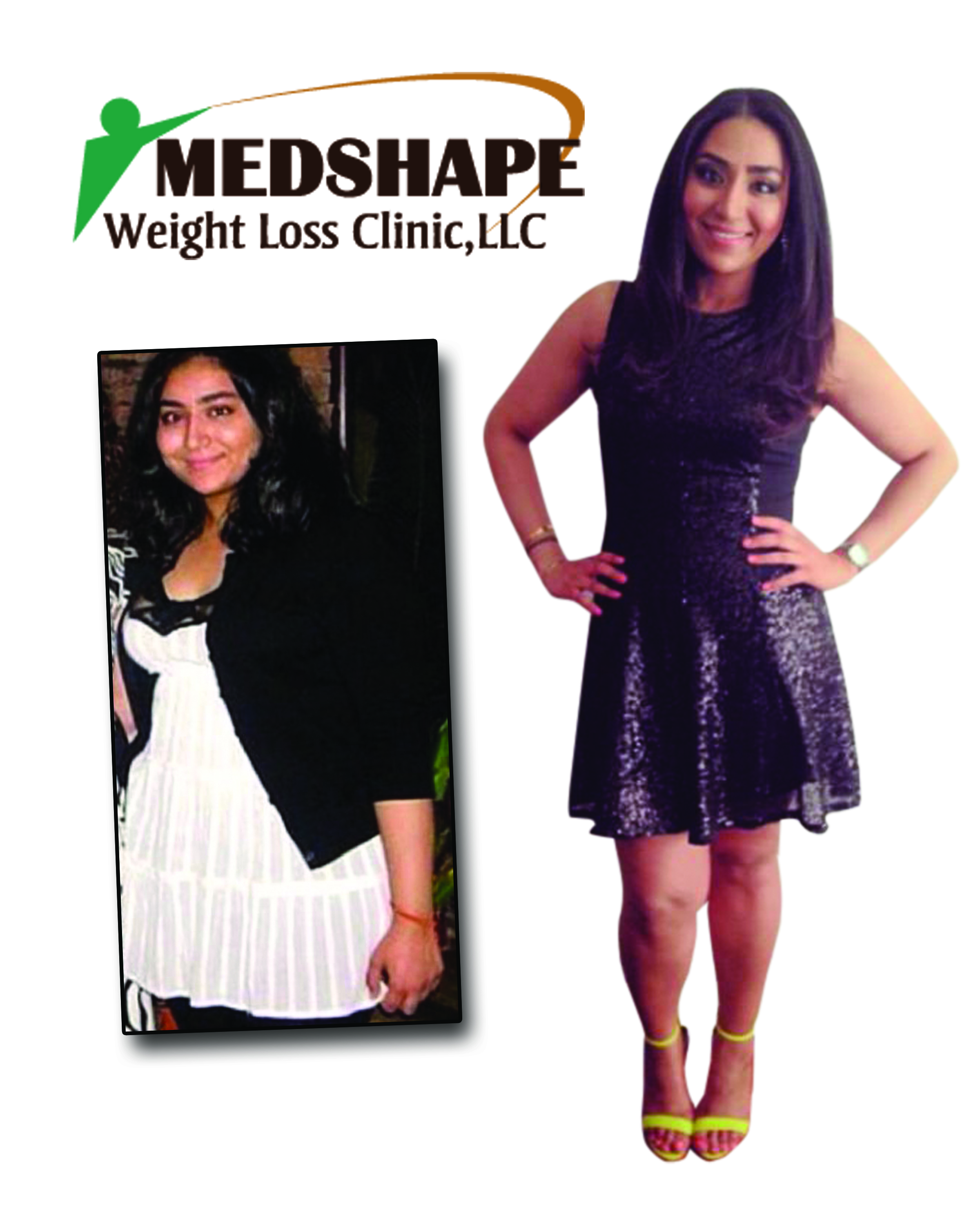 Medshape before / after Photo 3