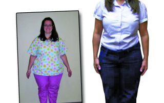 medshape before after weight loss 2